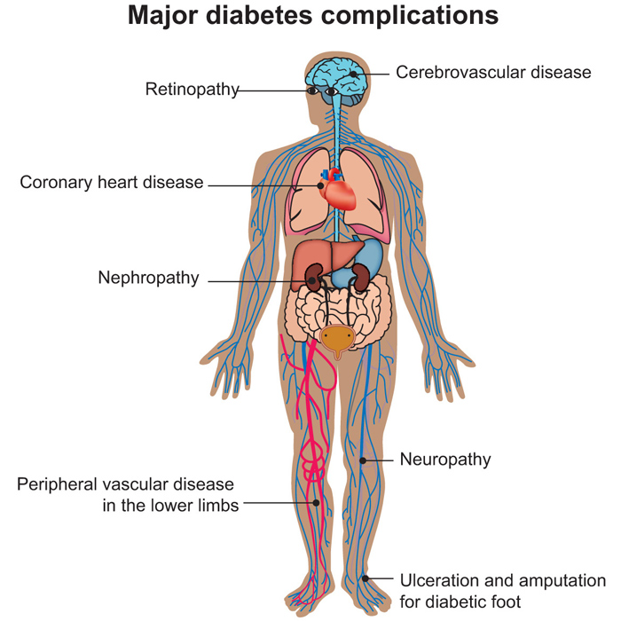 Complications - Peter Sheehan Diabetes Care Foundation